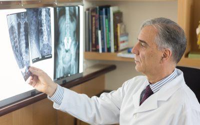 Tratamento para tumores da coluna vertebral